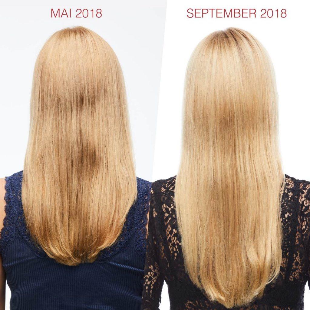 Kuidas saada juuksed kasvama?